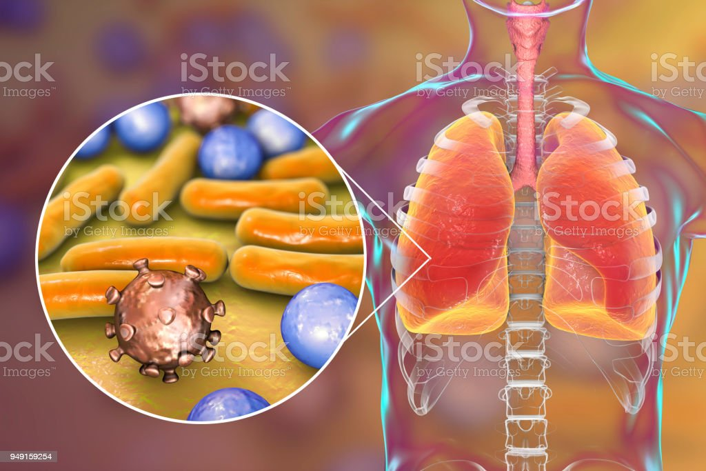 Pneumonia, medical concept, illustration showing human lungs and close-up view of microbes in lungs stock photo