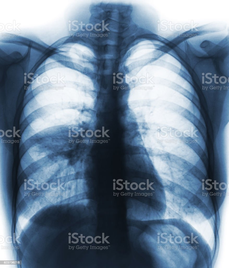 Pneumonia ( film chest x-ray show alveolar infiltrate at right middle lung ) stock photo