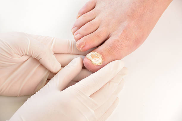 podiatrist examining patient stock photo
