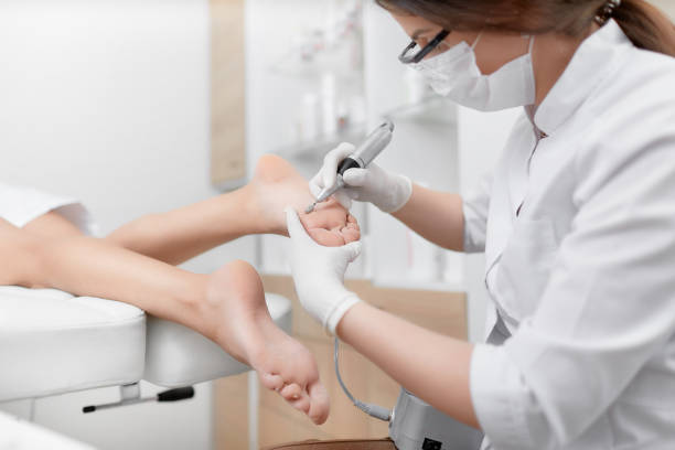 podiatrist using special grinding equipment - podiatry stock pictures, royalty-free photos & images