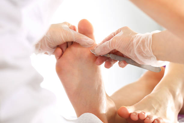 podology. removing the prints on the foot. - podiatry stock pictures, royalty-free photos & images