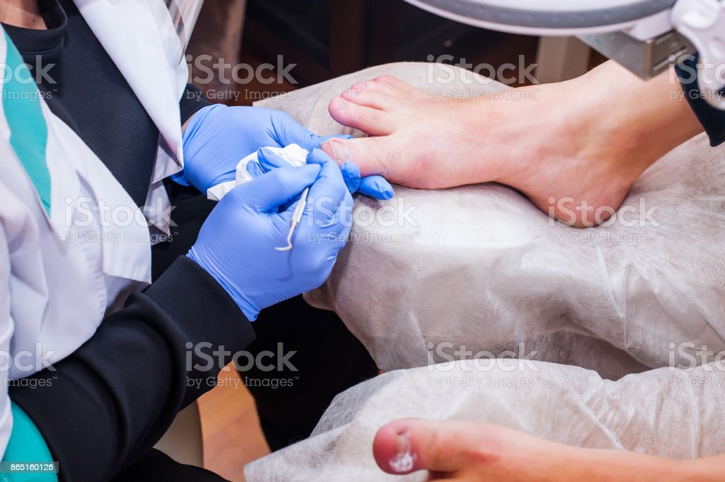 Podology treatment. Podiatrist treating toenail fungus. Doctor removes calluses, corns and treats ingrown nail. Hardware manicure. Health, body care concept. Selective focus stock photo