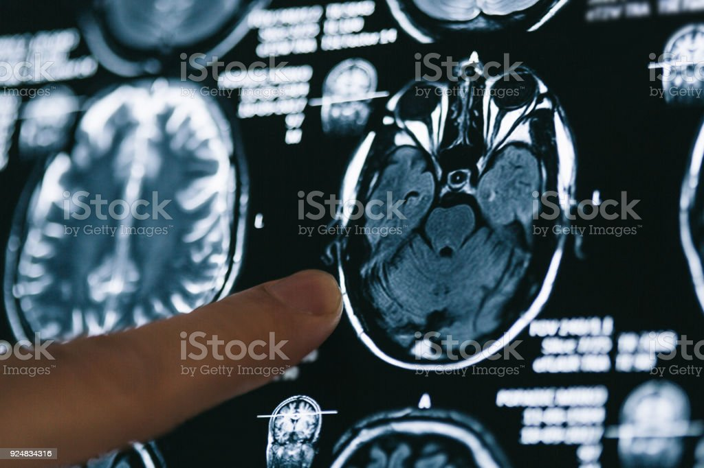 Pointing on X-ray brain image - foto stock