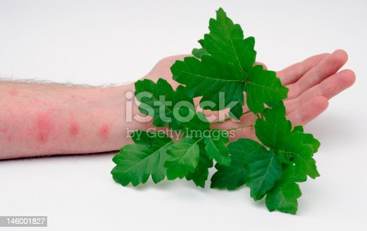 Poison Oak leaves held by someone with a Poison Oak skin rash.