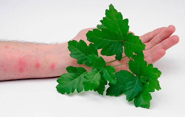 gifteiche mit haut rash - poison ivy pflanzen stock-fotos und bilder
