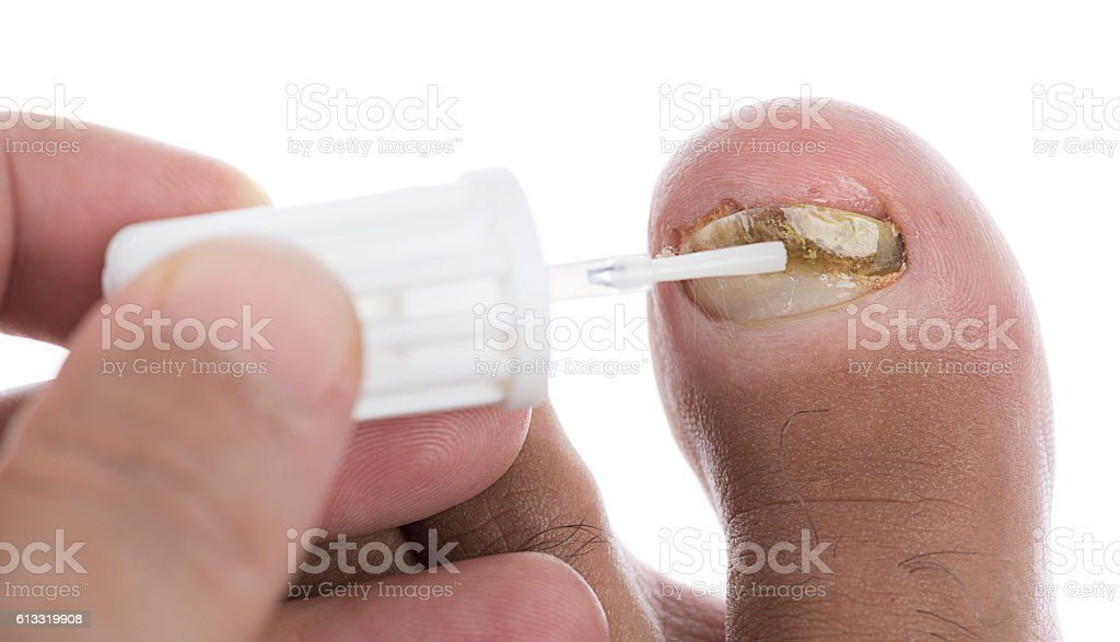 Polish On Toenail Fungus Stock Photo & More Pictures of Applying ...
