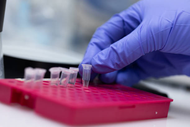Polymerase Chain Reaction (PCR) and Agarose gel electrophoresis is a method of gel electrophoresis used in biochemistry, molecular biology, genetics, and clinical chemistry in lab. stock photo