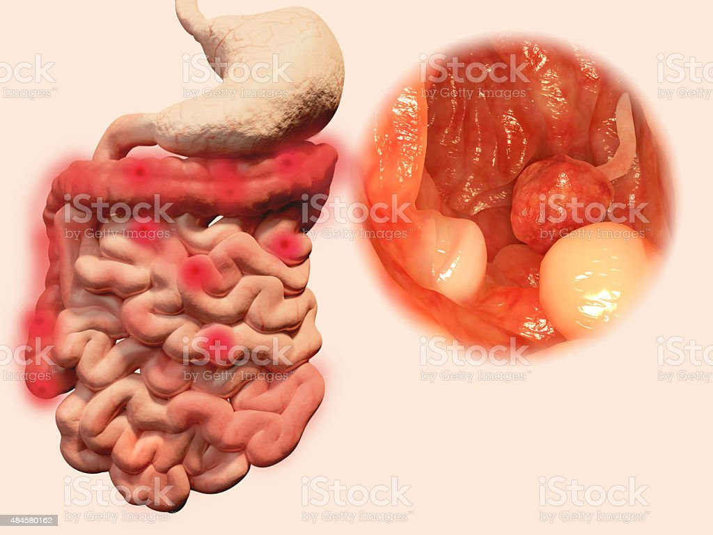 Polyps in the gastrointestinal tract stock photo