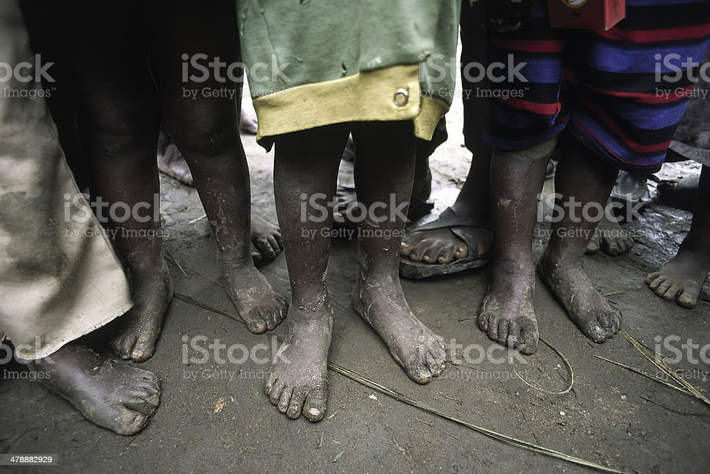 Poor African children waiting for food barefoot stock photo