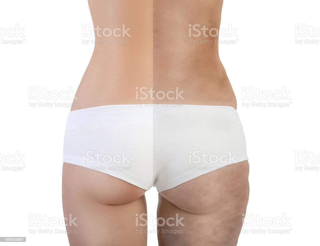 poor condition- perfect condition stock photo