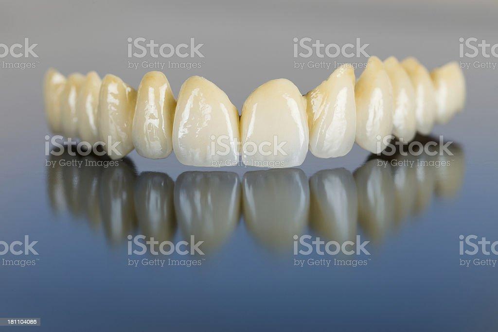 Porcelain teeth - dental bridge stock photo
