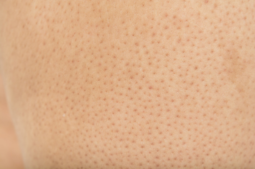 Pores On The Body In Women Stock Photo - Download Image Now