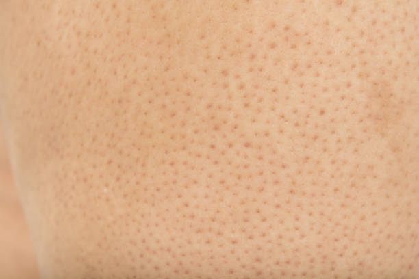 Pores on the body in women stock photo