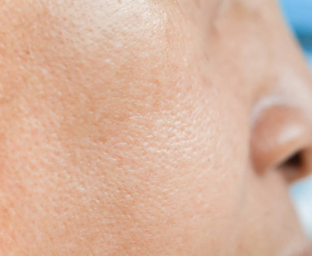 Pores on the face in women stock photo