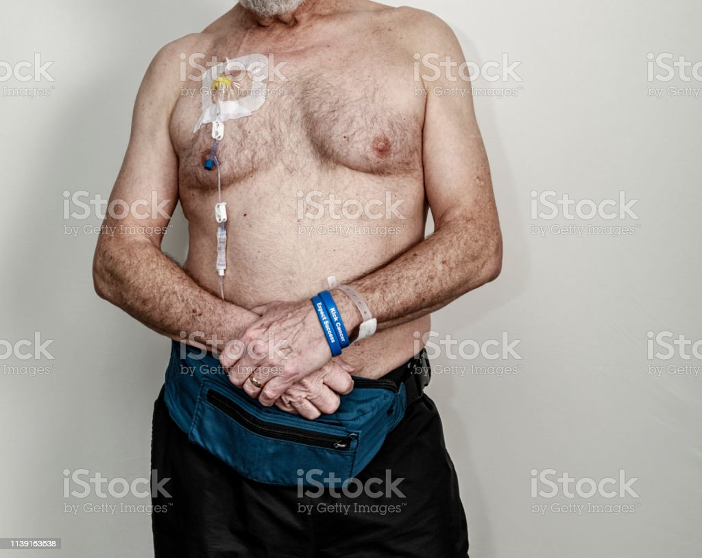 Portable Iv Drip Pump Chemotherapy Senior Man Cancer Patient Stock Photo Download Image Now Istock