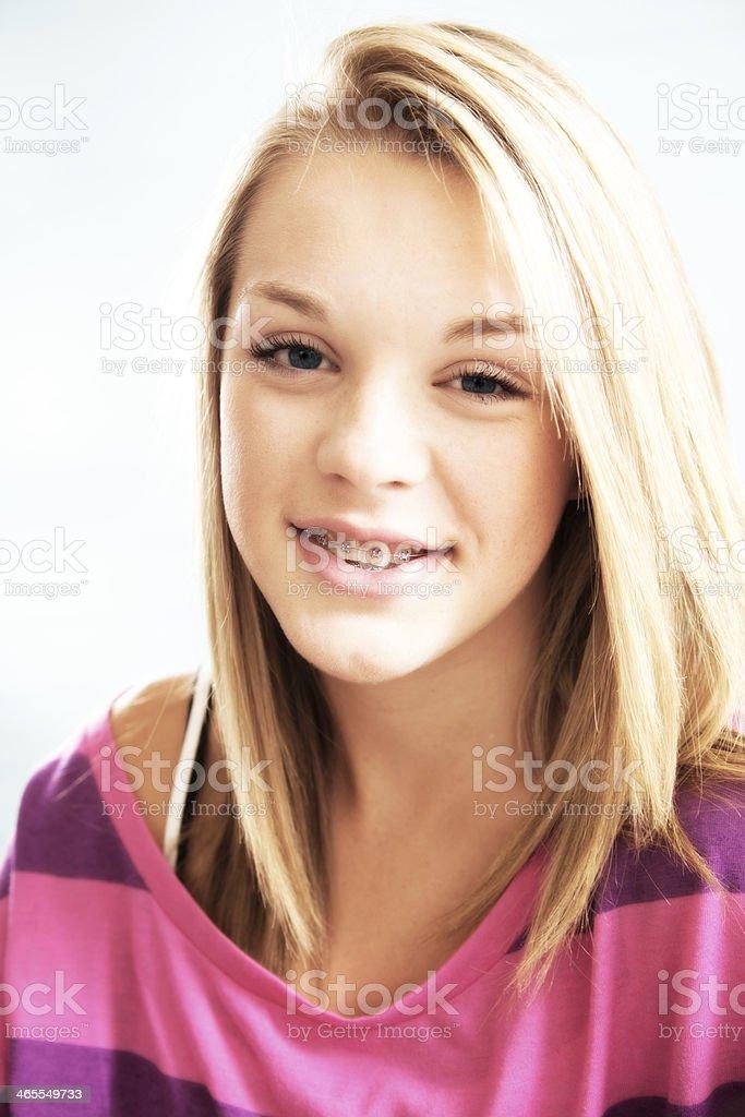 Girl teen braces — photo 12