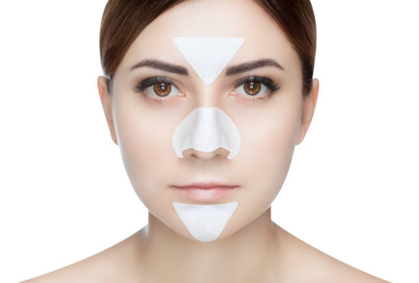 Portrait of a beautiful girl with a mask from acne on the nose and t-zone. stock photo