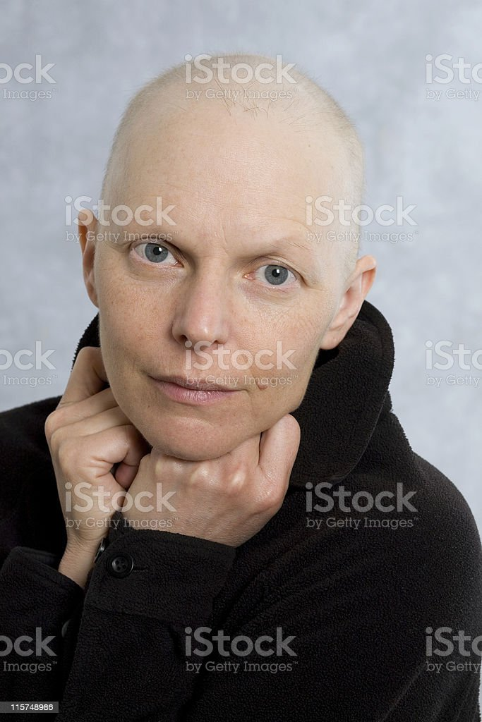 Portrait of a breast cancer patient royalty-free stock photo