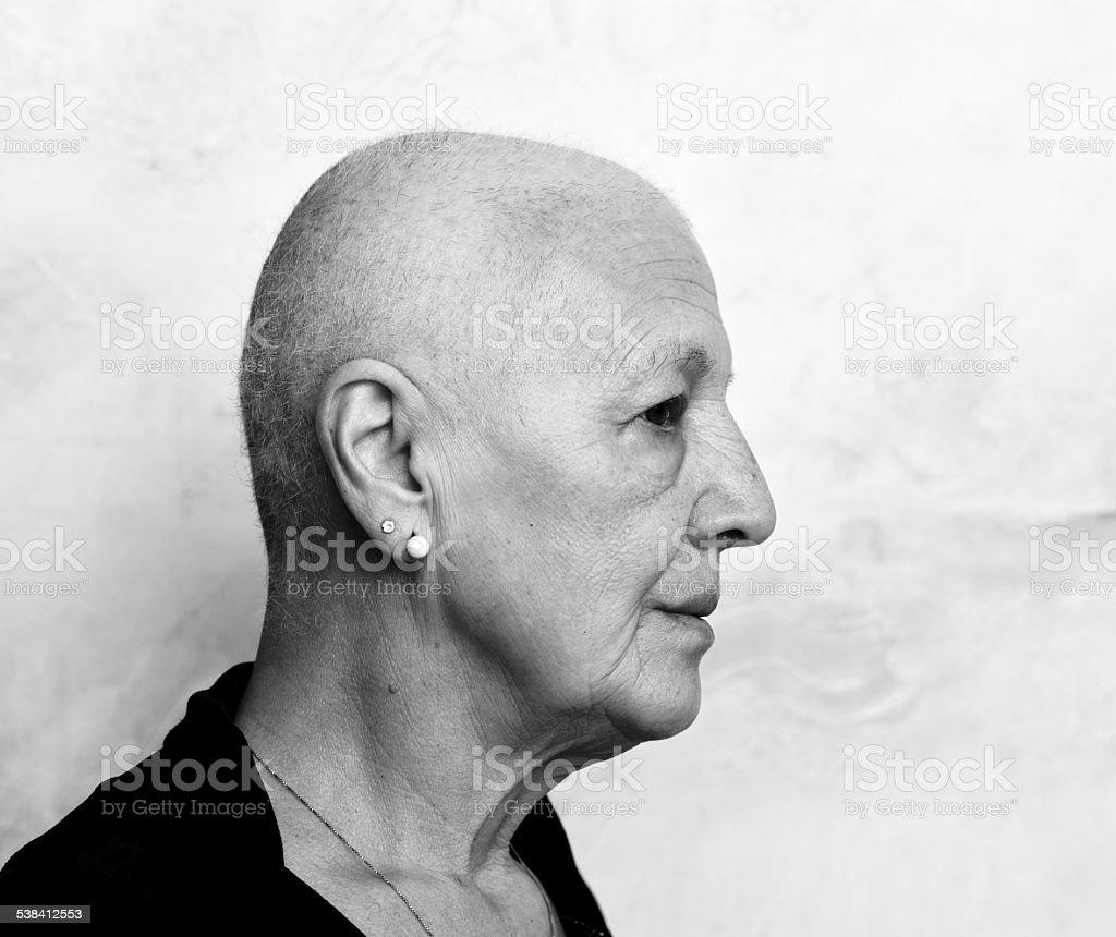 Porträt eines von Krebs Patienten – Foto