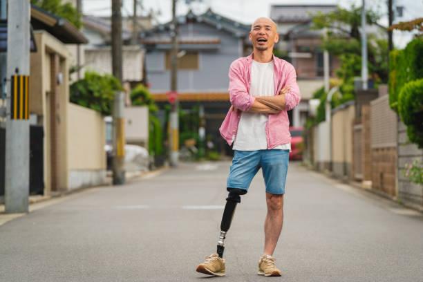 retrato de um amputado enérgico jovem confiante - body positive - fotografias e filmes do acervo