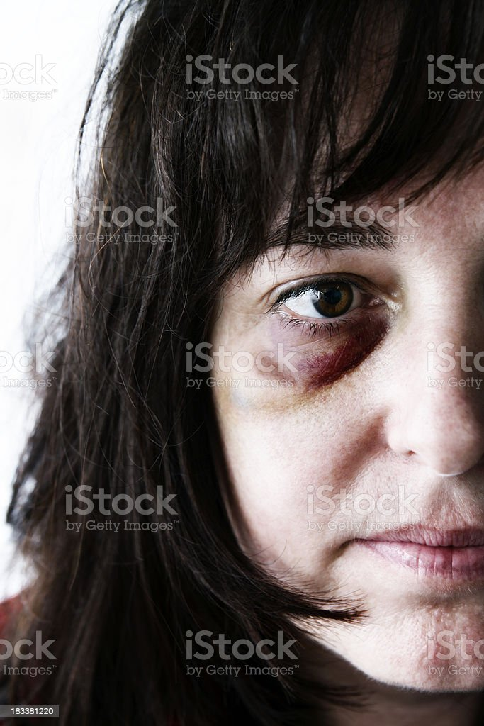 Portrait of a depressed, battered middle-aged woman stock photo