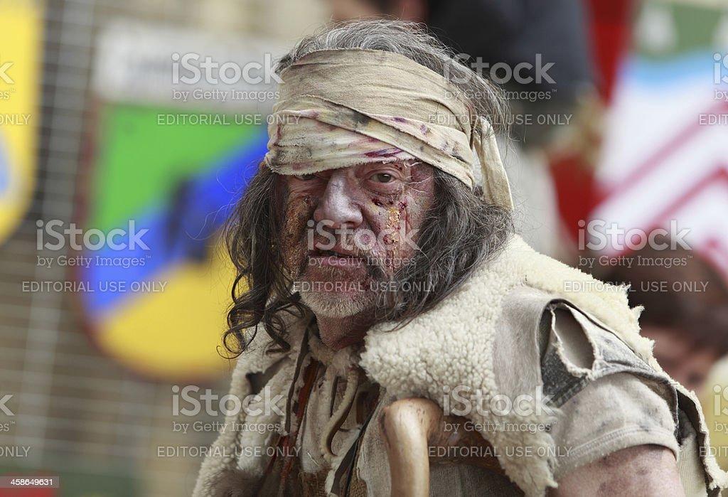 Portrait of a leprous man stock photo