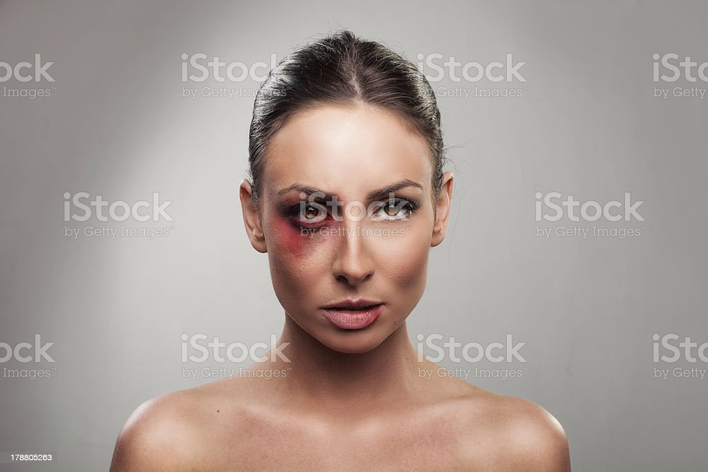 portrait of a pretty girl beaten up royalty-free stock photo