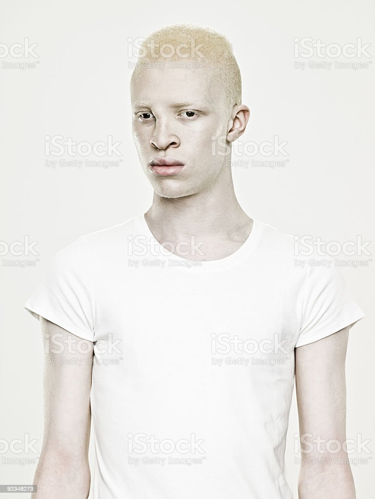 Portrait of a young albino man stock photo