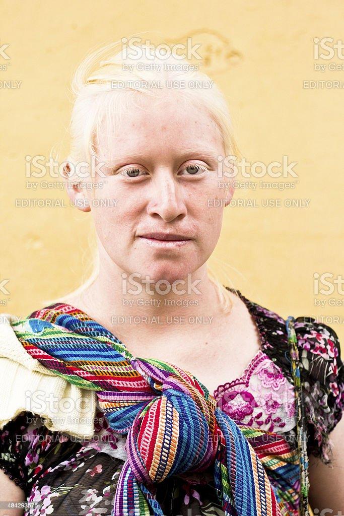 Portrait of an albino woman stock photo