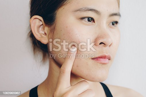 Problems with acne and scar on the female skin.