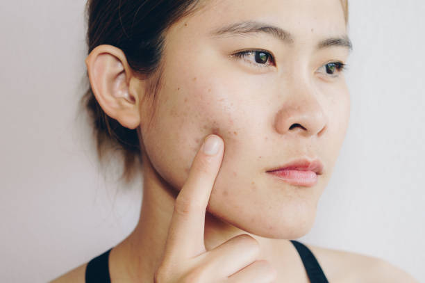 Portrait of Asian woman has problems with skin on her face. Problems with acne and scar on the female skin. scar stock pictures, royalty-free photos & images