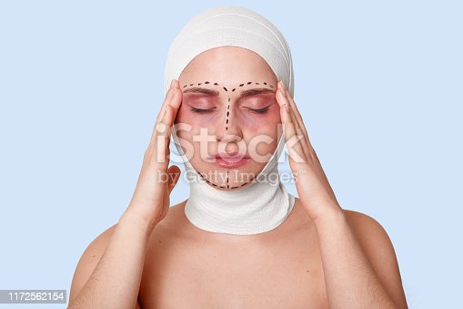 istock Portrait of beautiful girl in bandage on her head and black correction marks, keeps her hands near temples, suffers from terrible headache after anti aging procedures in cliinic. Cosmetology concept. 1172562154