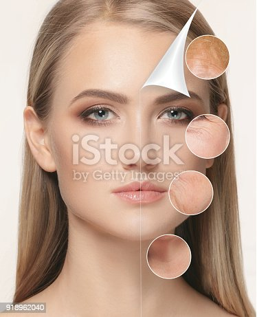 istock portrait of beautiful woman with problem and clean skin, aging a 918962040