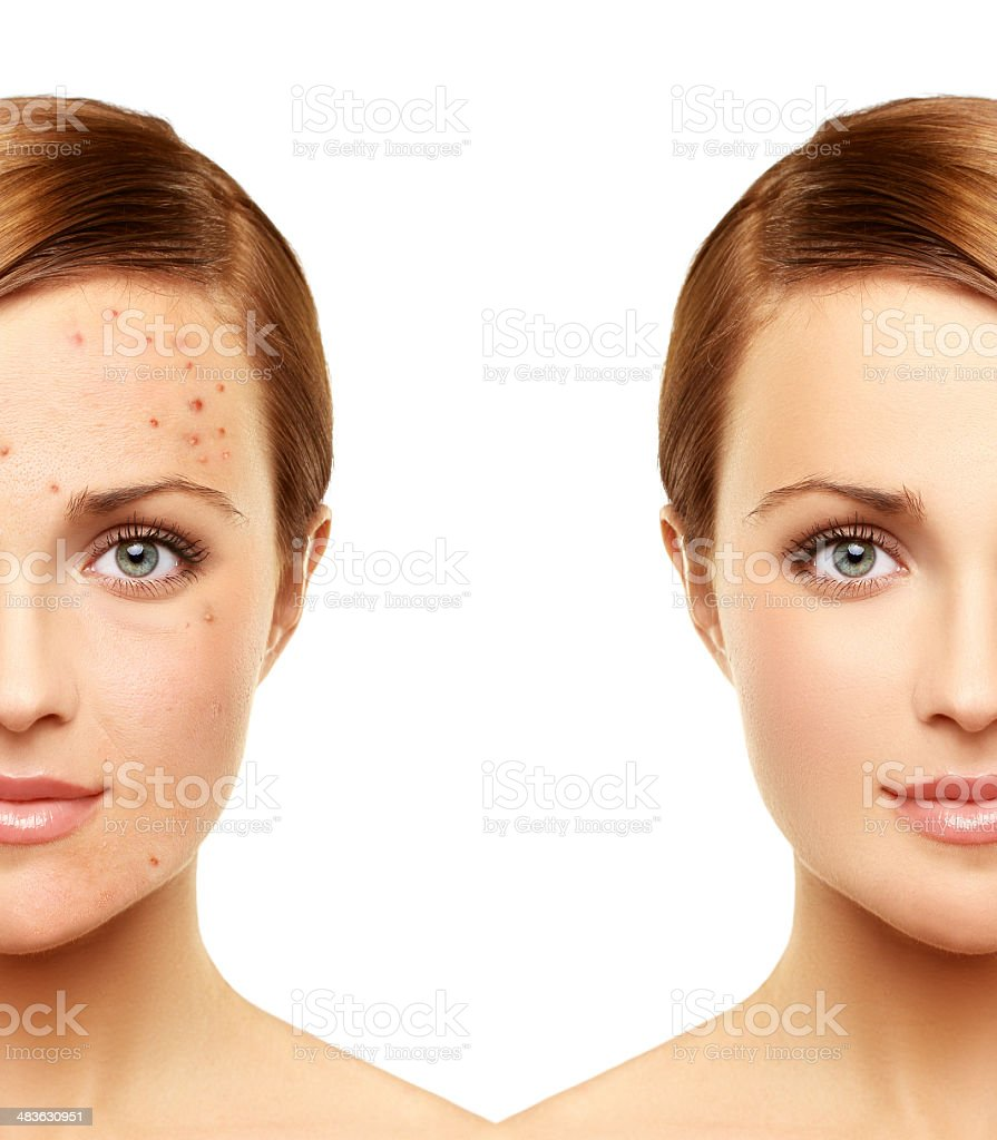 Portrait of beautiful woman with problem and clear skin stock photo