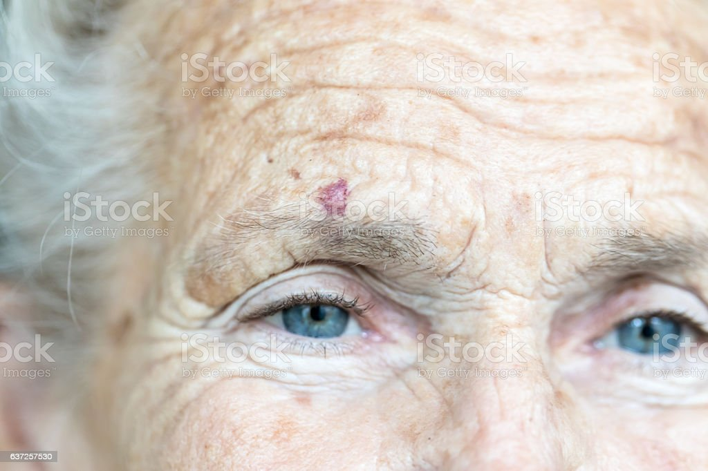 Portrait of caucasian senior woman with cut over her eye stock photo