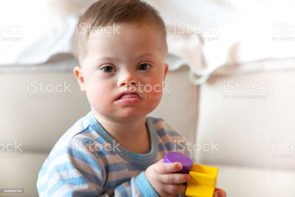 Portrait Of Cute Baby Boy With Down Syndrome стоковые