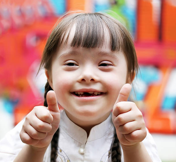 Portrait of girl with down syndrome - foto stock
