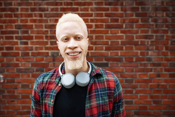 Portrait of handsome albino African man