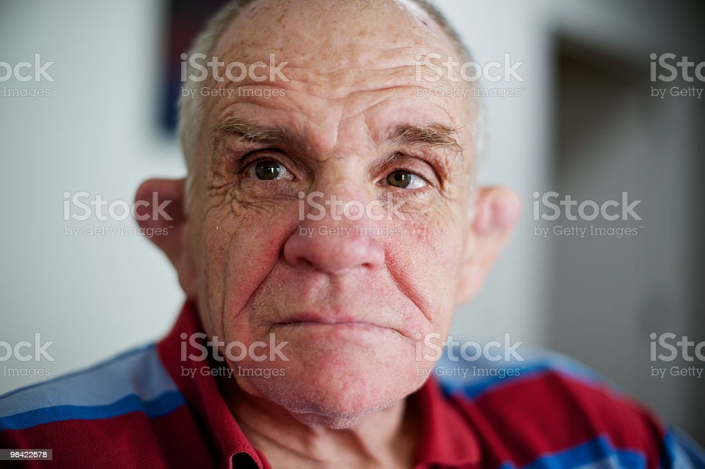Portrait of man with a disability and gentle eyes royalty-free stock photo