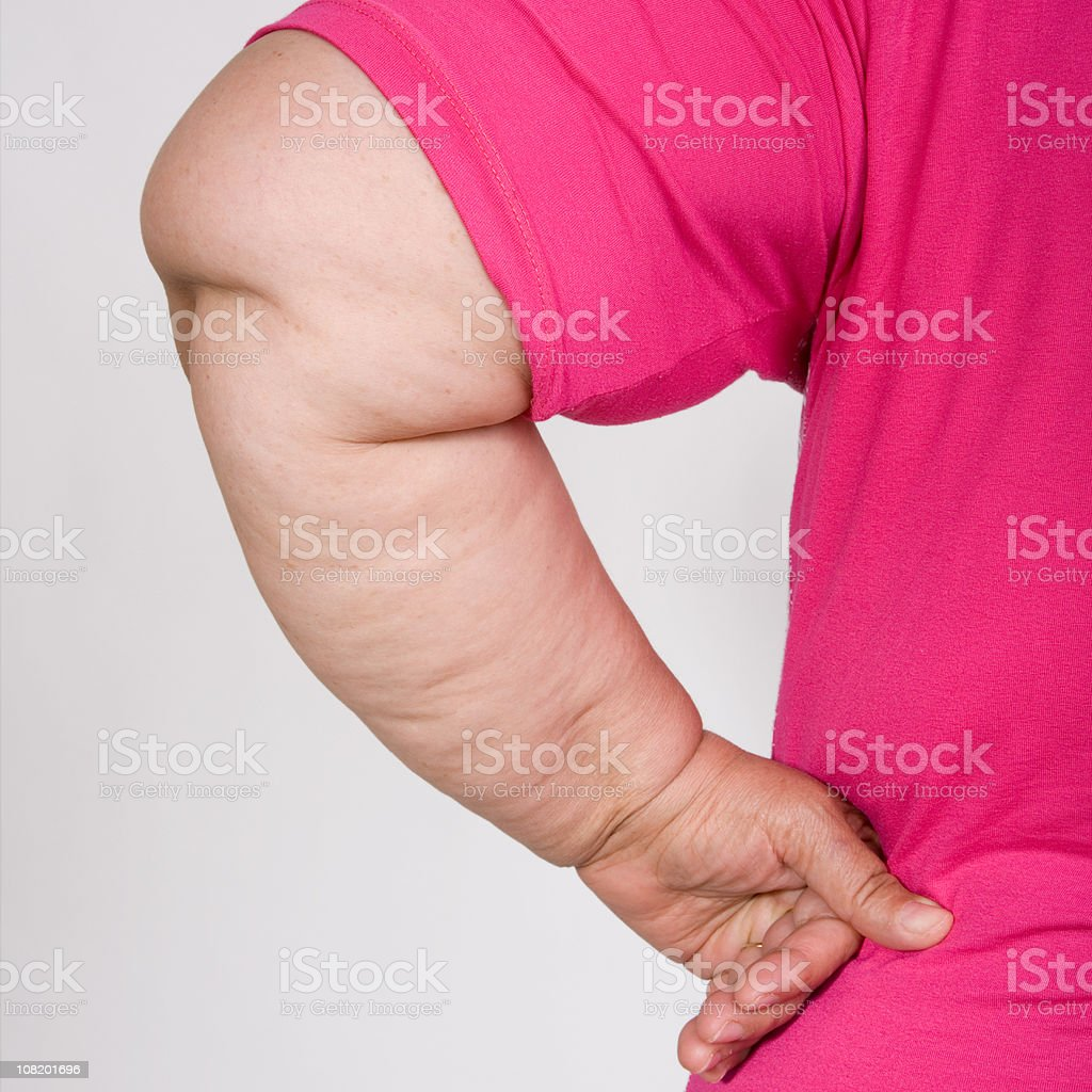 Portrait of Obese Woman's Arm royalty-free stock photo