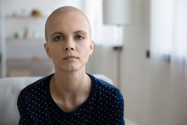 Portrait of unhappy sick hairless woman suffer from oncology Profile picture of tired unhappy sick young hairless woman struggling with oncology lack energy. Headshot portrait of sad distressed ill bald female patient suffer from cancer. Healthcare concept. chemotherapy cancer stock pictures, royalty-free photos & images