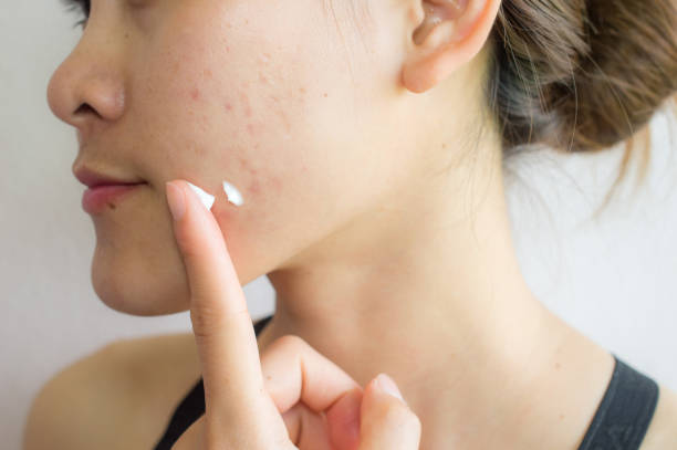 Portrait of young Asian woman having acne problem. Applying acne cream on her face. Shot of woman preparing for applying acne cream for solve her problem skin. scar stock pictures, royalty-free photos & images