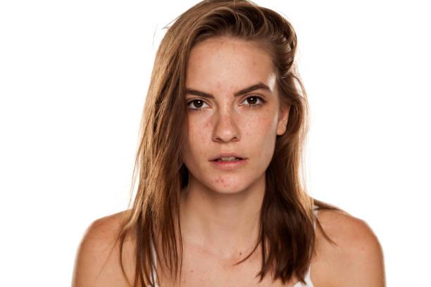 年輕美麗的女人的肖像與壓裂和有問題的皮膚在白色背溝圖像檔