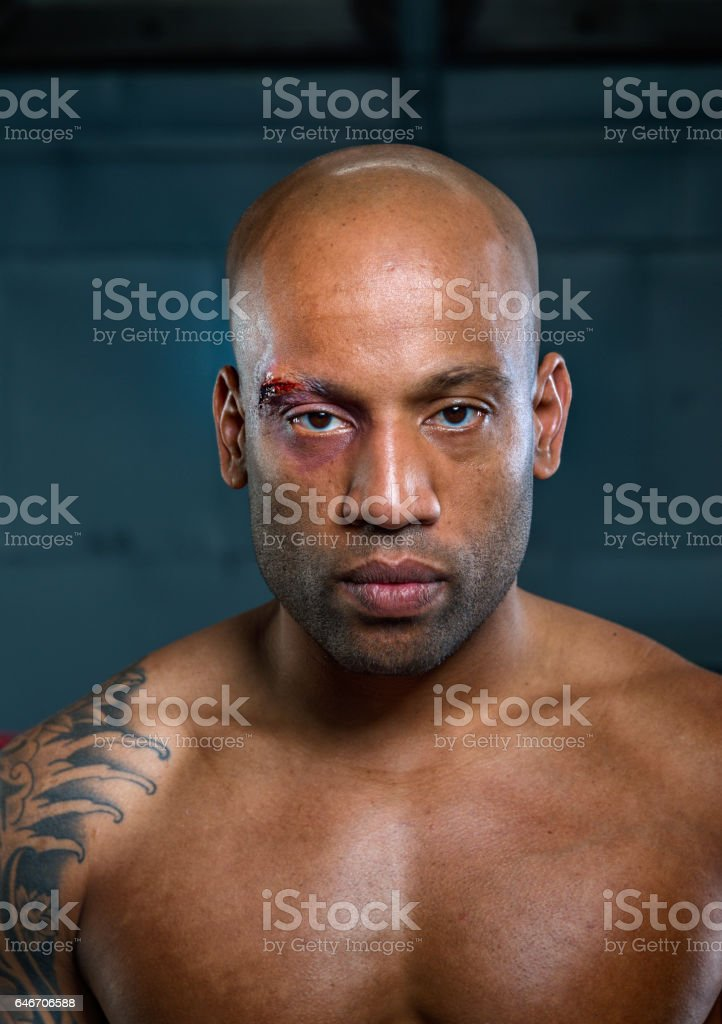 Portret of wounded free fighter after match stock photo
