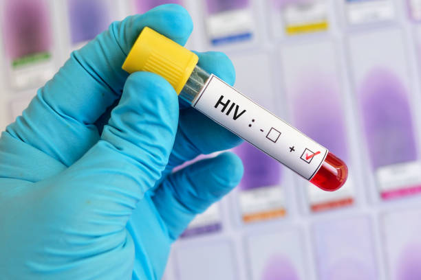 HIV positive blood sample Blood sample positive with HIV test hiv stock pictures, royalty-free photos & images