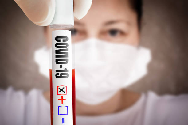 Positive COVID-19 test. Coronavirus outbreak around the world stock photo