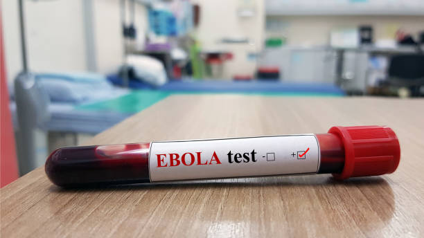 Positive Ebola test and laboratory sample of blood testing for diagnosis Ebola infection. Ebola virus disease(EVD)cause hemorrhagic fever(EHF).Tropical infectious and diagnostic technology concept stock photo