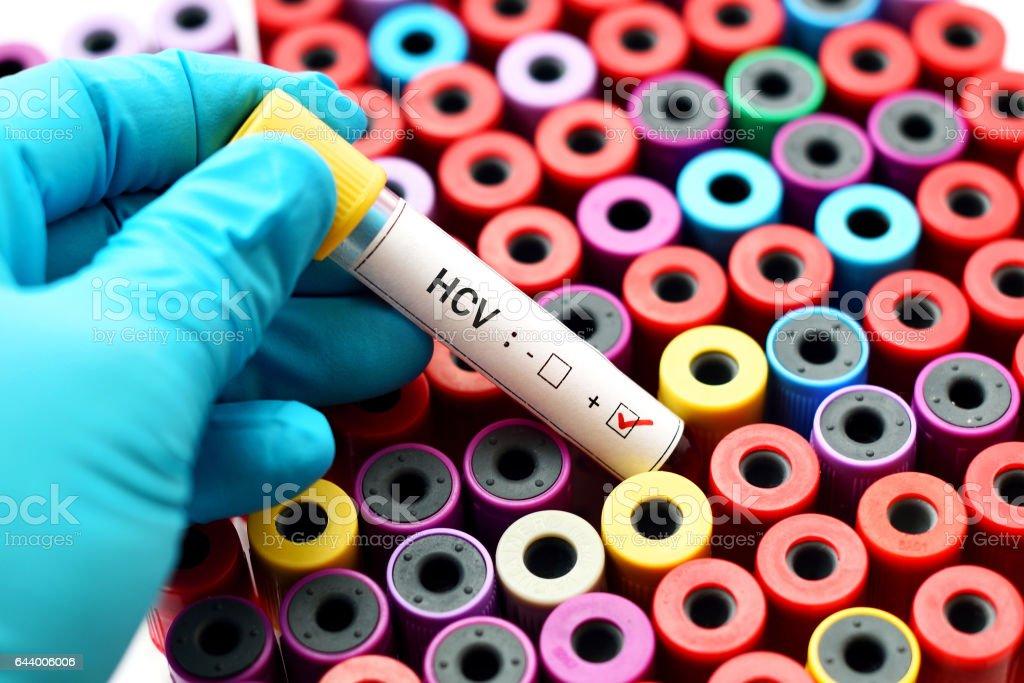 HCV positive stock photo