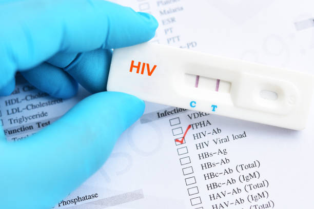 HIV positive test result HIV positive test result by using rapid test cassette hiv stock pictures, royalty-free photos & images