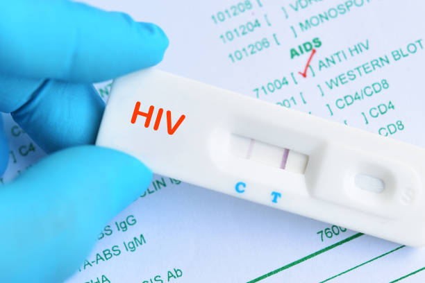 HIV positive test result stock photo